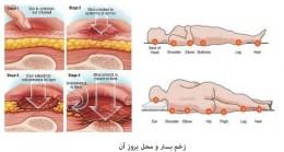 زخم بستر چیست و راه های جلوگیری از آن کدامند؟